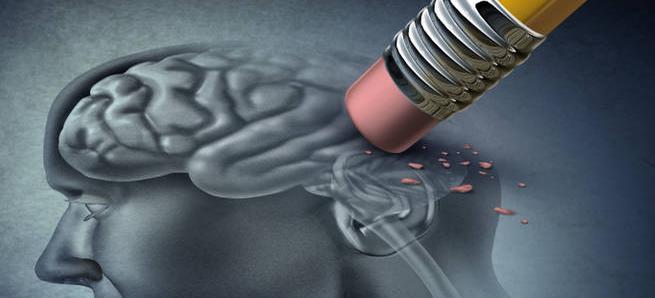 Jesmo li pogrešni u vezi s Alzheimerovom bolešću? Istraživači preispituju uobicajeno lijecenje nakon novog otkrića